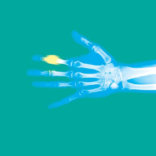 گروه بریسهای مچ، شست و انگشتان دست